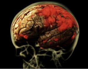 Brain_2013