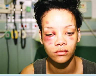 Chris Brown Quitting Music Because Of Rihanna Incident